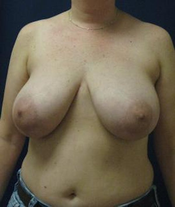 Breast Reduction Gallery - Patient 4861806 - Image 1