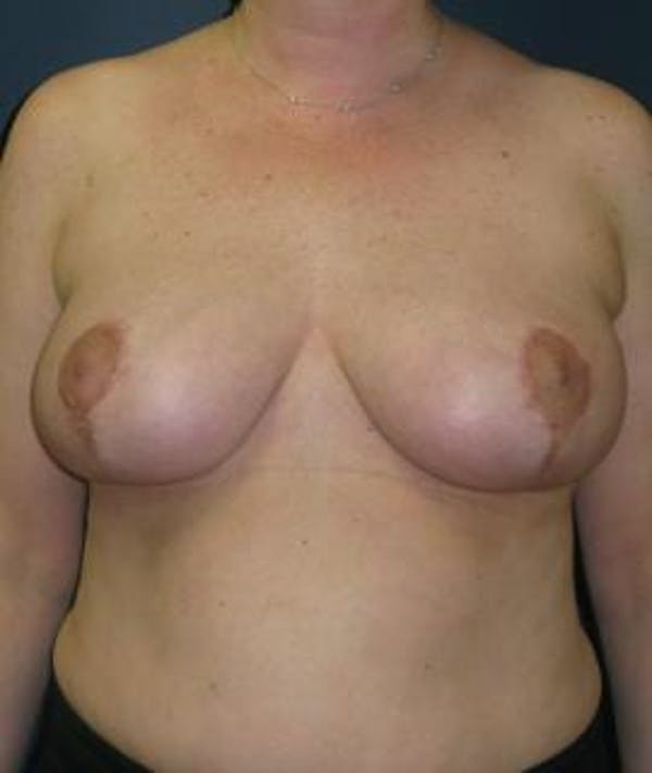 Breast Reduction Gallery - Patient 4861806 - Image 2