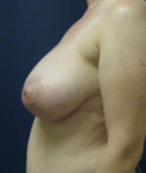 Breast Reduction Gallery - Patient 4861806 - Image 3