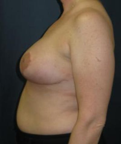 Breast Reduction Gallery - Patient 4861806 - Image 4