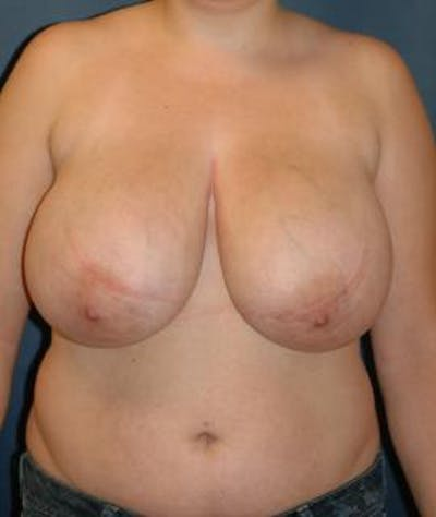 Breast Reduction Gallery - Patient 4861814 - Image 1
