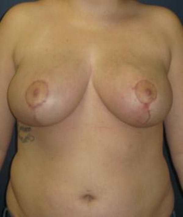 Breast Reduction Gallery - Patient 4861814 - Image 2