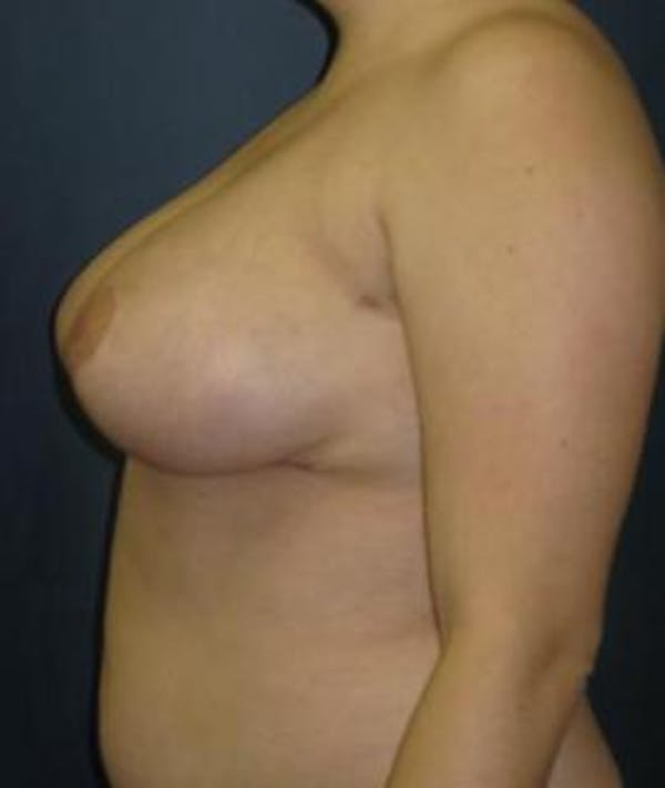 Breast Reduction Gallery - Patient 4861814 - Image 4
