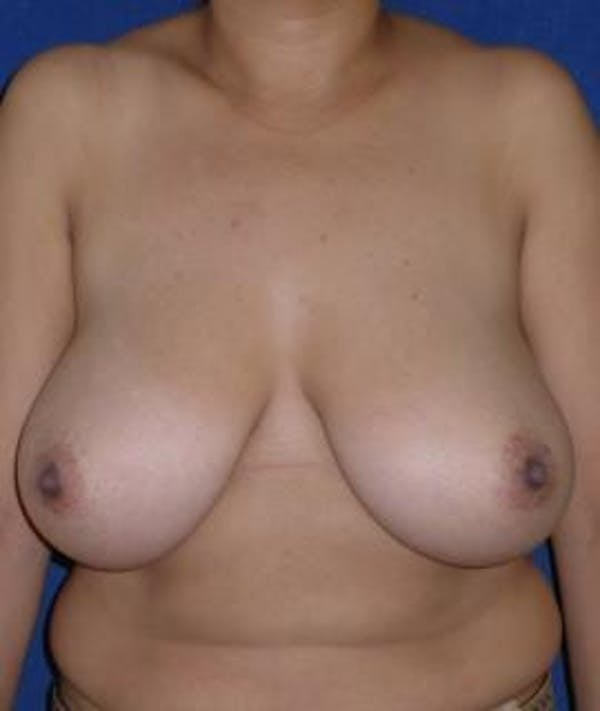 Breast Reduction Gallery - Patient 4861815 - Image 1