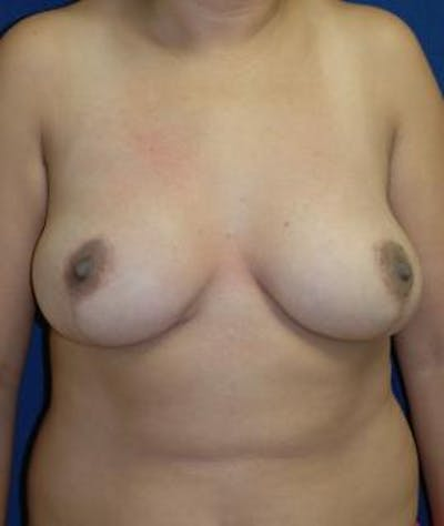 Breast Reduction Gallery - Patient 4861815 - Image 2