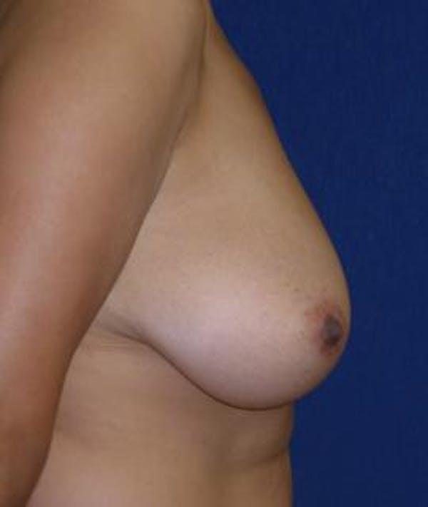 Breast Reduction Gallery - Patient 4861815 - Image 3