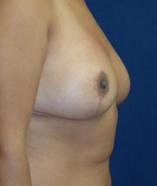 Breast Reduction Gallery - Patient 4861815 - Image 4