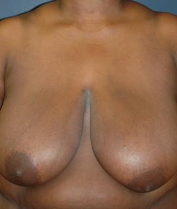 Breast Reduction Gallery - Patient 4861816 - Image 1