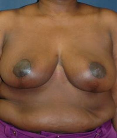 Breast Reduction Gallery - Patient 4861816 - Image 2
