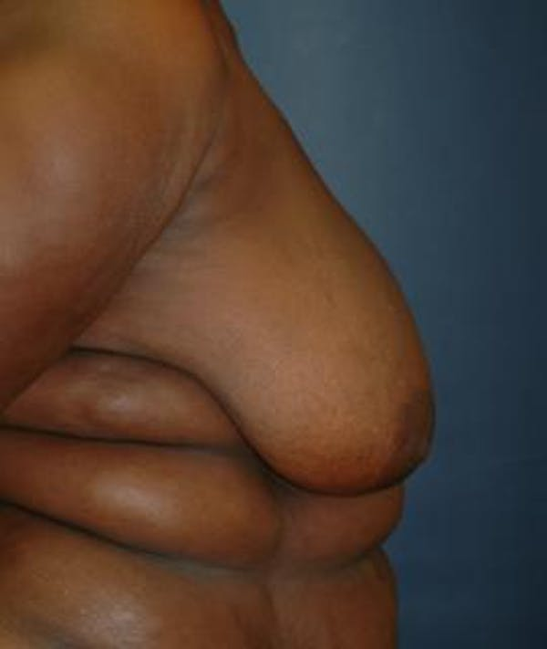 Breast Reduction Gallery - Patient 4861816 - Image 3