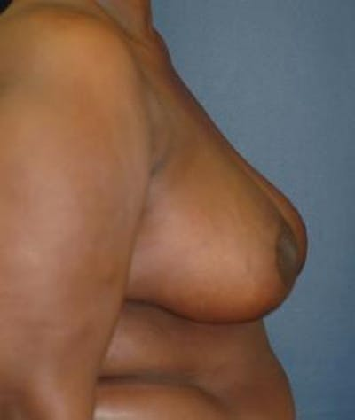 Breast Reduction Gallery - Patient 4861816 - Image 4