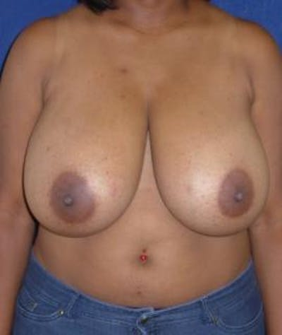 Breast Reduction Gallery - Patient 4861818 - Image 1