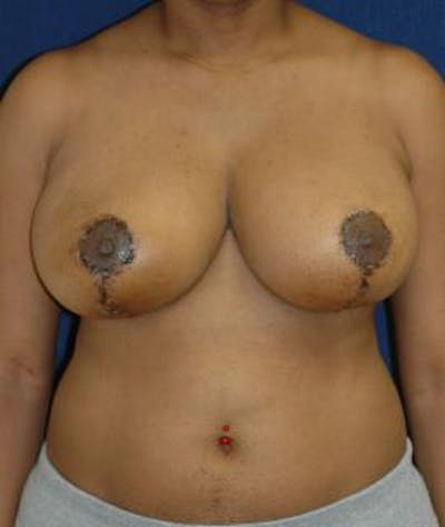 Breast Reduction Gallery - Patient 4861818 - Image 2