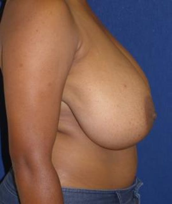 Breast Reduction Gallery - Patient 4861818 - Image 3