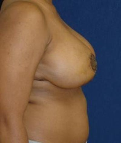 Breast Reduction Gallery - Patient 4861818 - Image 4