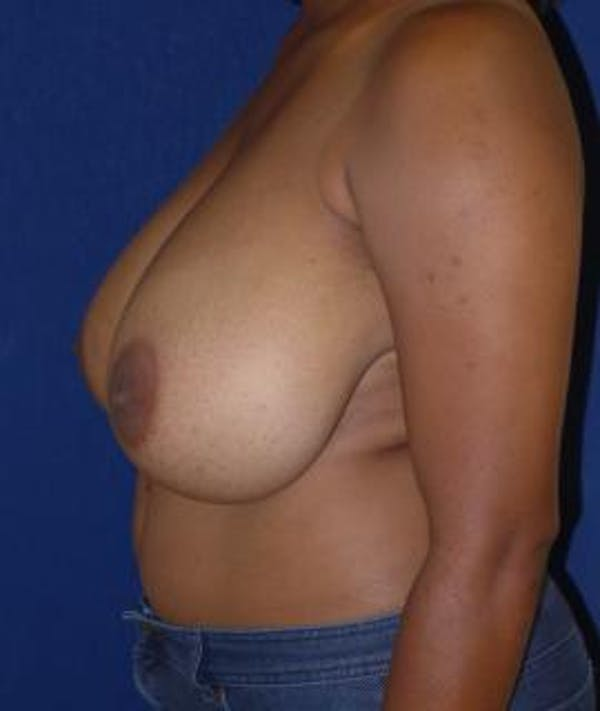 Breast Reduction Gallery - Patient 4861818 - Image 5
