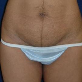 Tummy Tuck (Abdominoplasty) Gallery - Patient 4861819 - Image 1