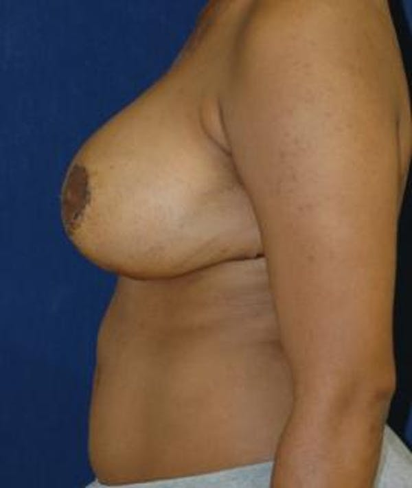 Breast Reduction Gallery - Patient 4861818 - Image 6