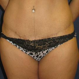 Tummy Tuck (Abdominoplasty) Gallery - Patient 4861819 - Image 2