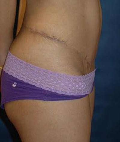 Tummy Tuck (Abdominoplasty) Gallery - Patient 4861819 - Image 4