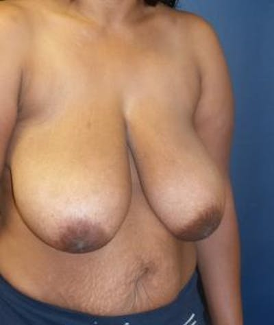 Breast Reduction Gallery - Patient 4861820 - Image 1