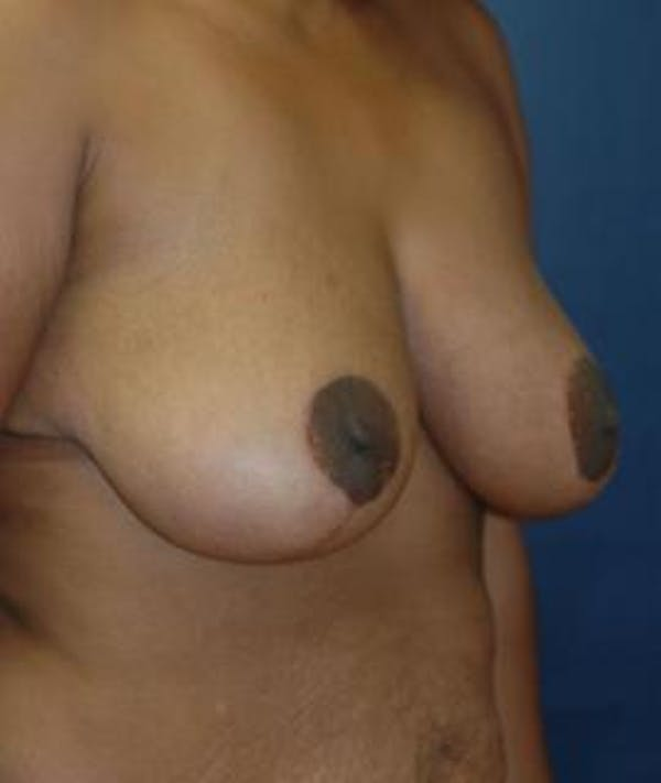 Breast Reduction Gallery - Patient 4861820 - Image 2