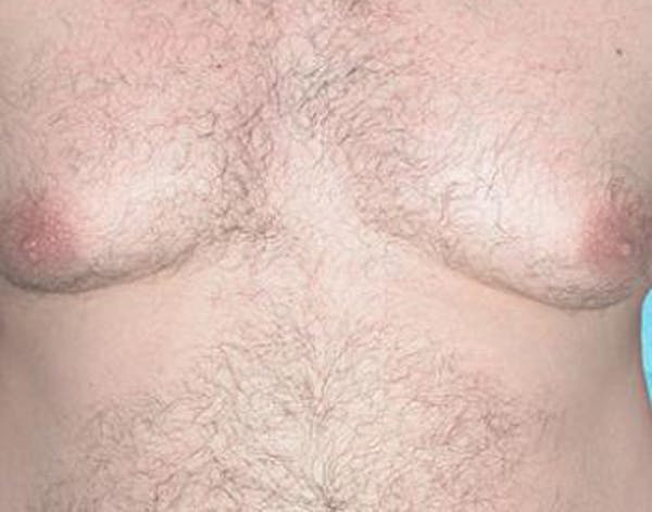 Male Subcutaneous Mastectomy (Gynecomastia) Gallery - Patient 4861821 - Image 1