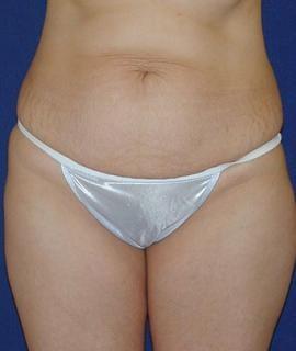 Tummy Tuck (Abdominoplasty) Gallery - Patient 4861822 - Image 1