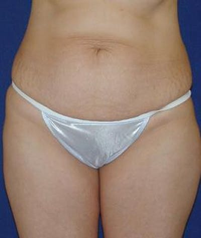Tummy Tuck (Abdominoplasty) Gallery - Patient 4861822 - Image 1
