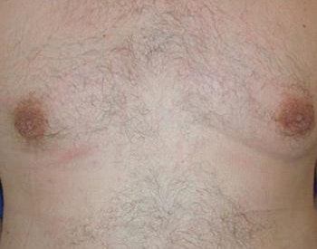 Male Subcutaneous Mastectomy (Gynecomastia) Gallery - Patient 4861821 - Image 2
