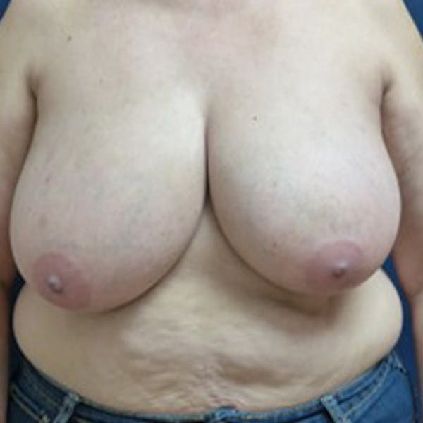 Breast Reduction Gallery - Patient 4861823 - Image 1