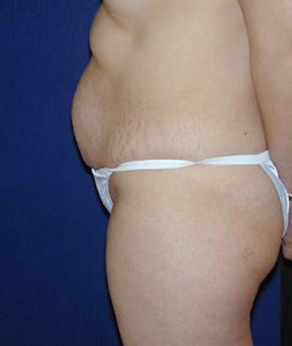 Tummy Tuck (Abdominoplasty) Gallery - Patient 4861822 - Image 3