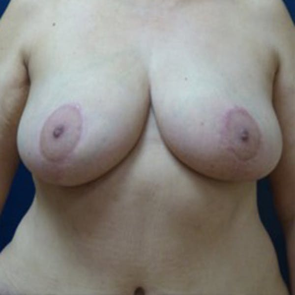 Breast Reduction Gallery - Patient 4861823 - Image 2