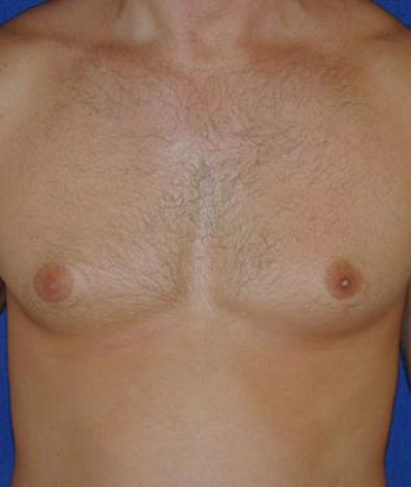 Male Subcutaneous Mastectomy (Gynecomastia) Gallery - Patient 4861824 - Image 1