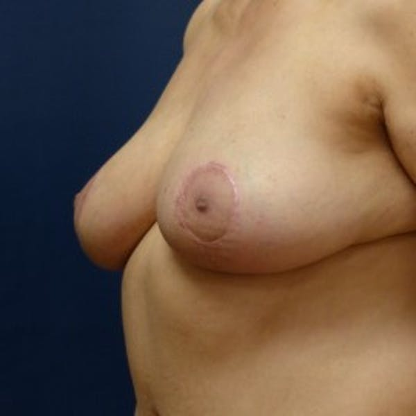 Breast Reduction Gallery - Patient 4861823 - Image 4
