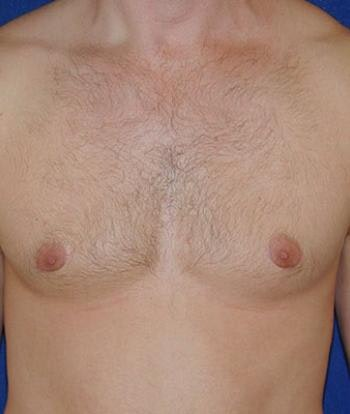 Male Subcutaneous Mastectomy (Gynecomastia) Gallery - Patient 4861824 - Image 2
