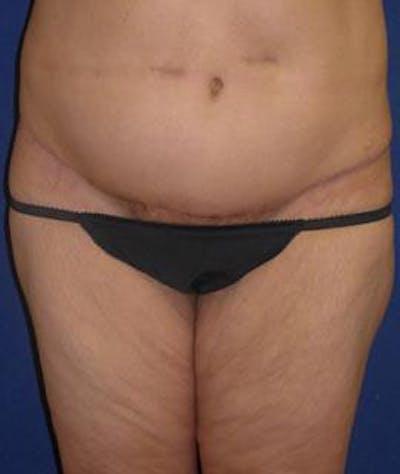 Tummy Tuck (Abdominoplasty) Gallery - Patient 4861825 - Image 2
