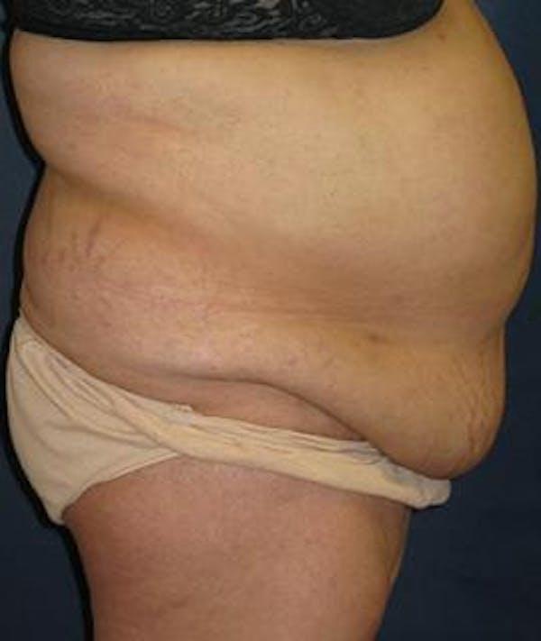 Tummy Tuck (Abdominoplasty) Gallery - Patient 4861825 - Image 3