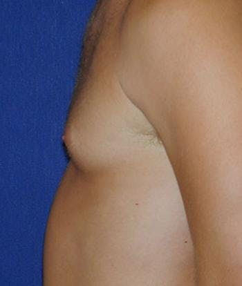 Male Subcutaneous Mastectomy (Gynecomastia) Gallery - Patient 4861826 - Image 1