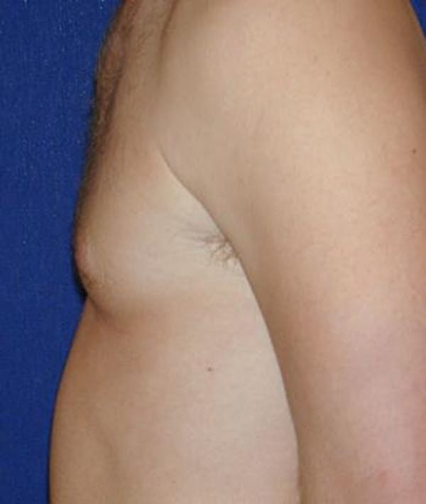 Male Subcutaneous Mastectomy (Gynecomastia) Gallery - Patient 4861826 - Image 2