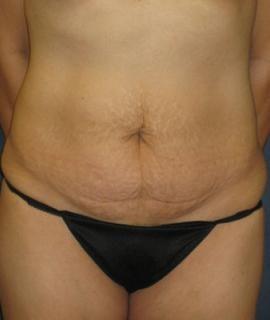 Tummy Tuck (Abdominoplasty) Gallery - Patient 4861888 - Image 1