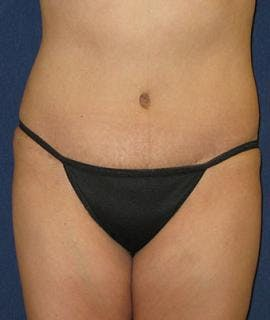 Tummy Tuck (Abdominoplasty) Gallery - Patient 4861888 - Image 2