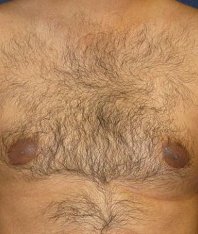 Male Subcutaneous Mastectomy (Gynecomastia) Gallery - Patient 4861894 - Image 4