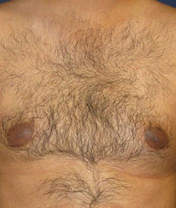 Male Subcutaneous Mastectomy (Gynecomastia) Gallery - Patient 4861894 - Image 1