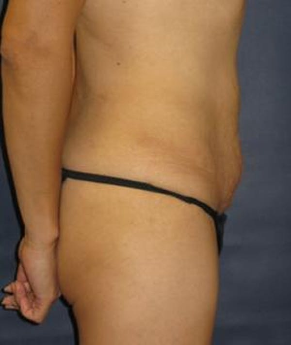 Tummy Tuck (Abdominoplasty) Gallery - Patient 4861888 - Image 3