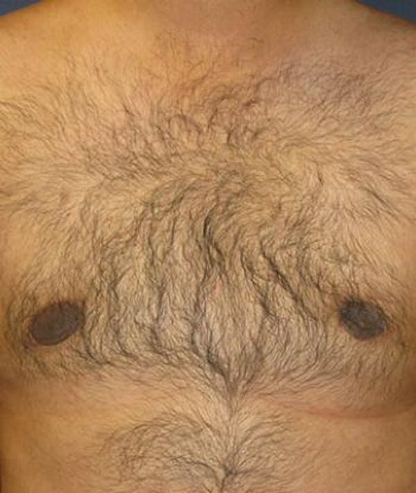 Male Subcutaneous Mastectomy (Gynecomastia) Gallery - Patient 4861894 - Image 2