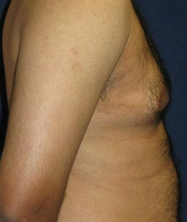 Male Subcutaneous Mastectomy (Gynecomastia) Gallery - Patient 4861894 - Image 3