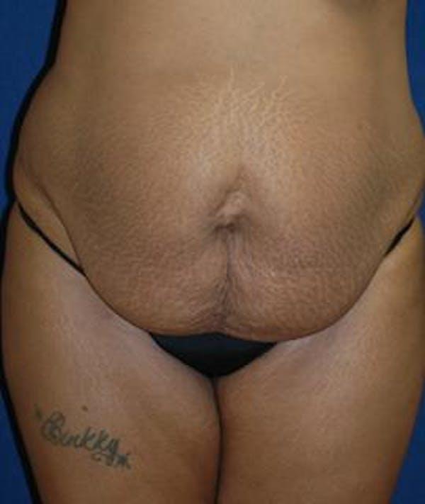 Tummy Tuck (Abdominoplasty) Gallery - Patient 4861895 - Image 1