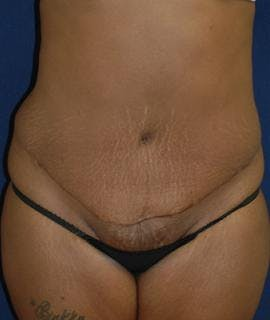 Tummy Tuck (Abdominoplasty) Gallery - Patient 4861895 - Image 2