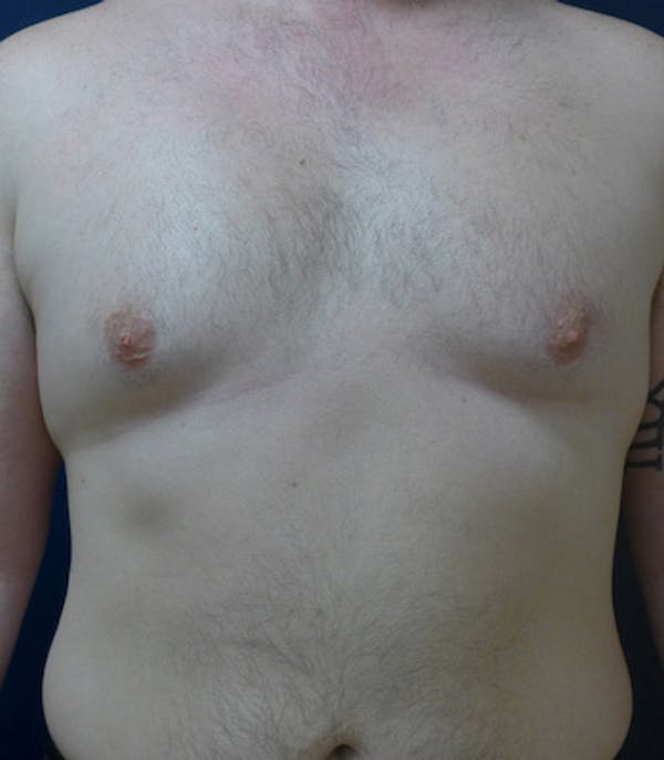 Male Subcutaneous Mastectomy (Gynecomastia) Gallery - Patient 4861896 - Image 1